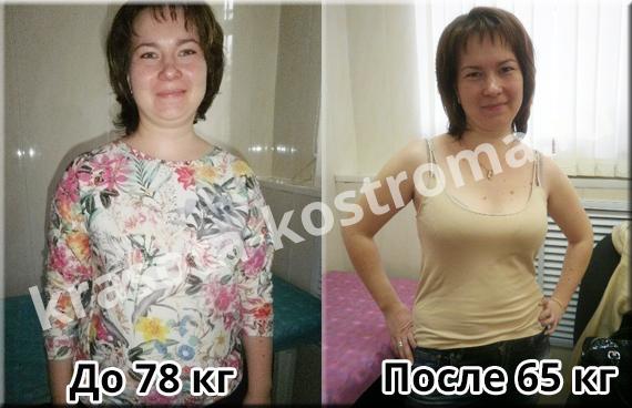 как похудеть в 43 года женщине